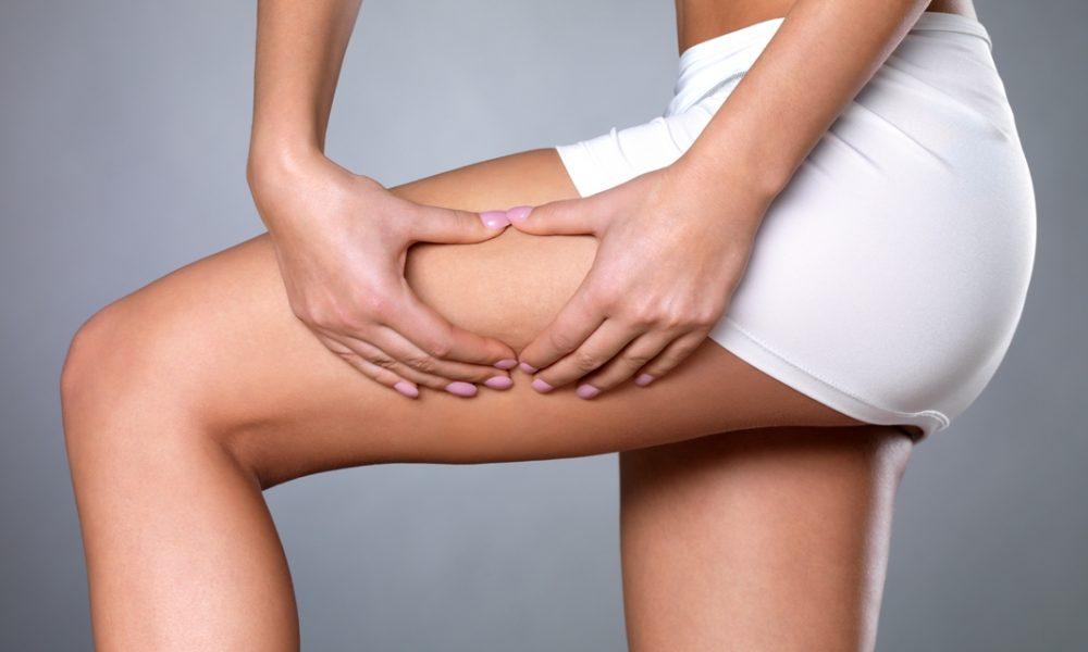 cellulite skin on her legs