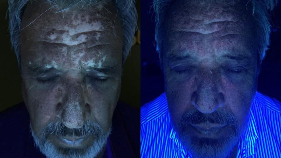 Resultados de 140 dias de tratamentos e fototerapia 3